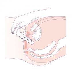 schéma dilatateur vaginoplastie